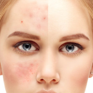 Acne Scar Treatments with micro-needling and PRP