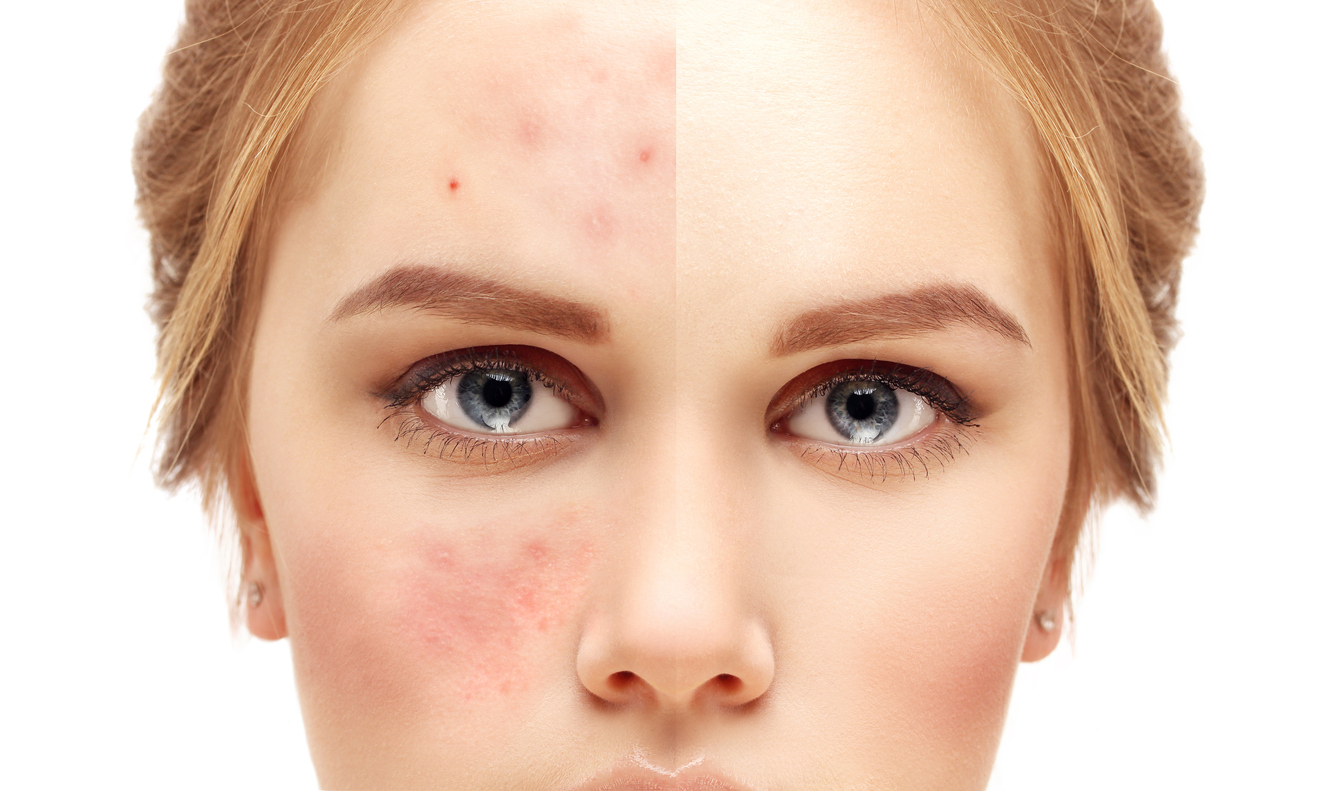 Why We Use Microneedling & Collagen Induction Therapy to Treat Acne Scars