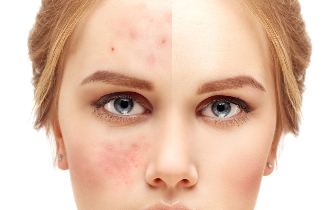How Microneedling and Collagen Induction Therapy Help Reduce Fine Lines and Wrinkles